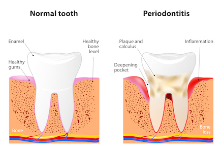 Image showing how gum disease and periodontitis can cause more decay on a tooth.