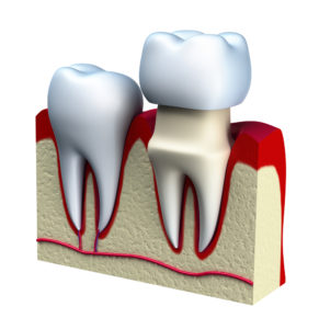 Image showing how a dental crown fits over a tooth.